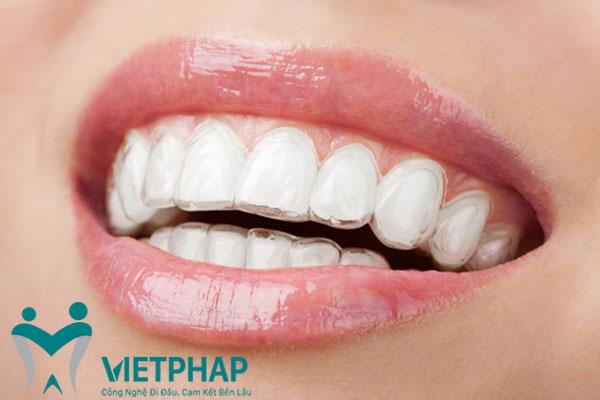 Niềng răng mắc cài trong suốt cho phí bao nhiêu ? 1
