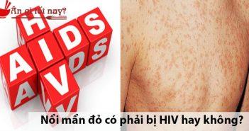 Nổi mẩn đỏ có phải bị HIV hay không?