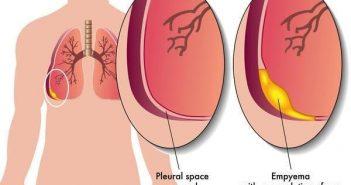 nguyên nhân gây ra bệnh tràn dịch màng phổi