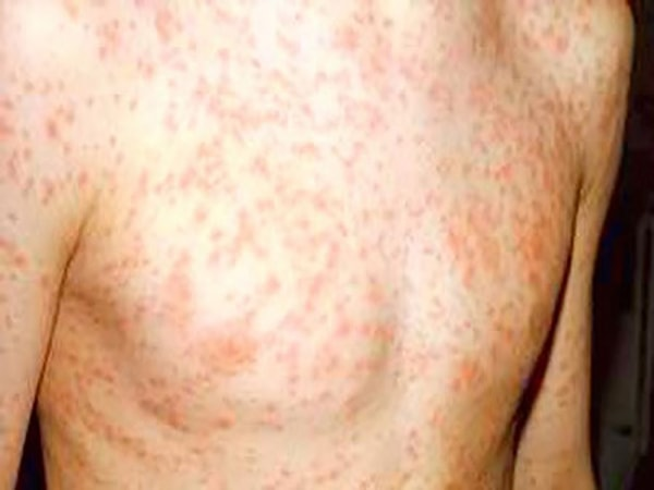 nổi mẩn đỏ có phải bị hiv 1