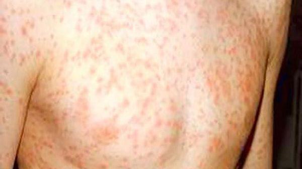 nổi mẩn đỏ có phải bị hiv